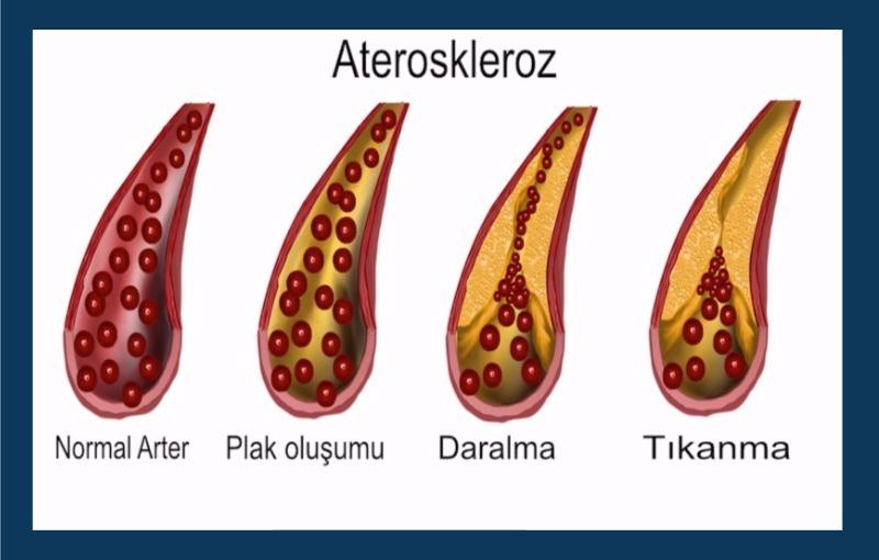 ateroskleroz-800x510