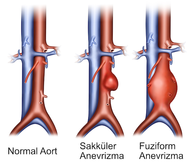 anevrizma-tipleri