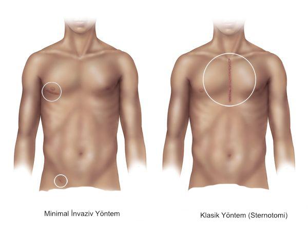 minimal-invaziv-kalp-cerrahisi