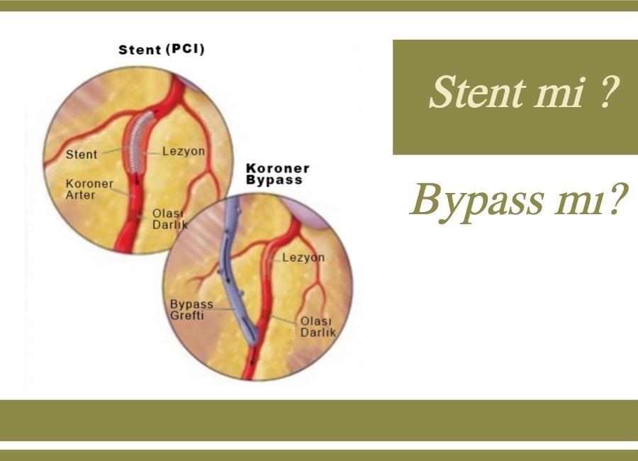 stent-vs-bypass
