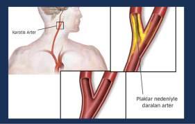 Karotis-arter-hastaligi-image