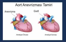 anevrizma-tamiri-image