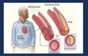 koroner-arter-hastaligi-image