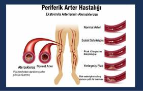 periferik-arter-hastaligi-image